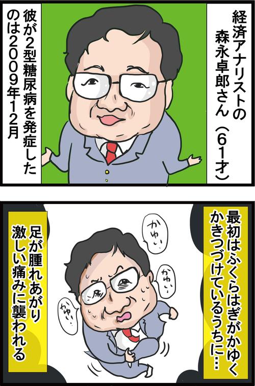 【血糖値】あわや足切断!?森永卓郎さんも危なかった糖尿病足病変の兆候とは…?1