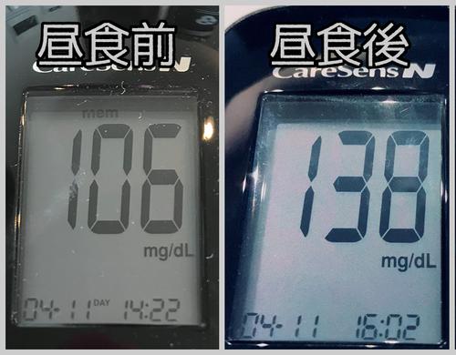 昼食前後血糖値