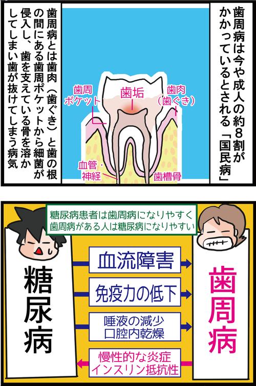 【血糖値】歯周病と糖尿病の意外な関係…3