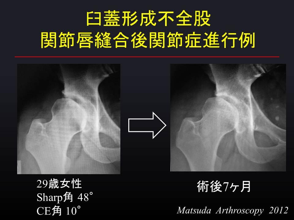2012年12月 : 関節鏡外科医のblog
