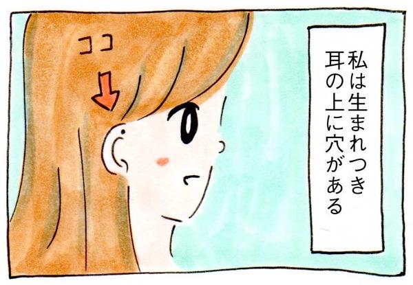 【先天性耳瘻孔】富に恵まれるという穴