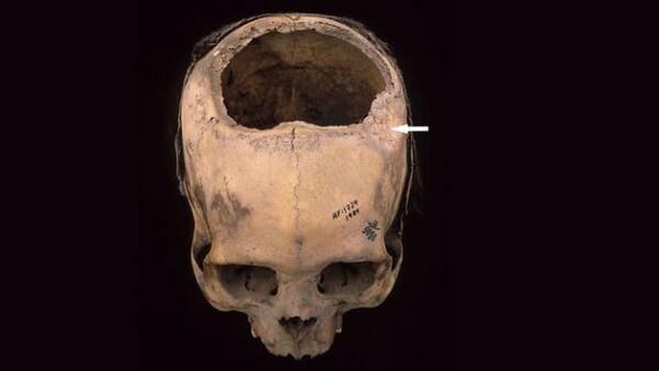 インカ文明の「穿頭手術」、その凄まじい成功率が明らかに