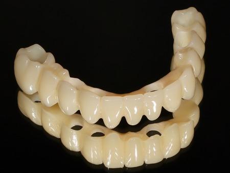 インプラント手術即日に装着する固定式の仮歯