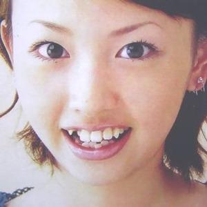 最近の女性って歯並び悪いの多すぎないか?