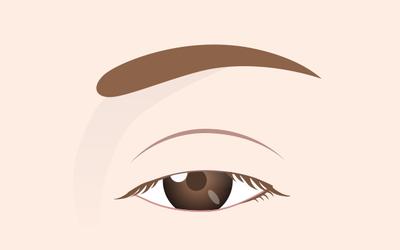 眼瞼下垂の分類2_軽度な下垂の画像