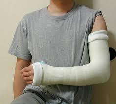 骨折 包帯