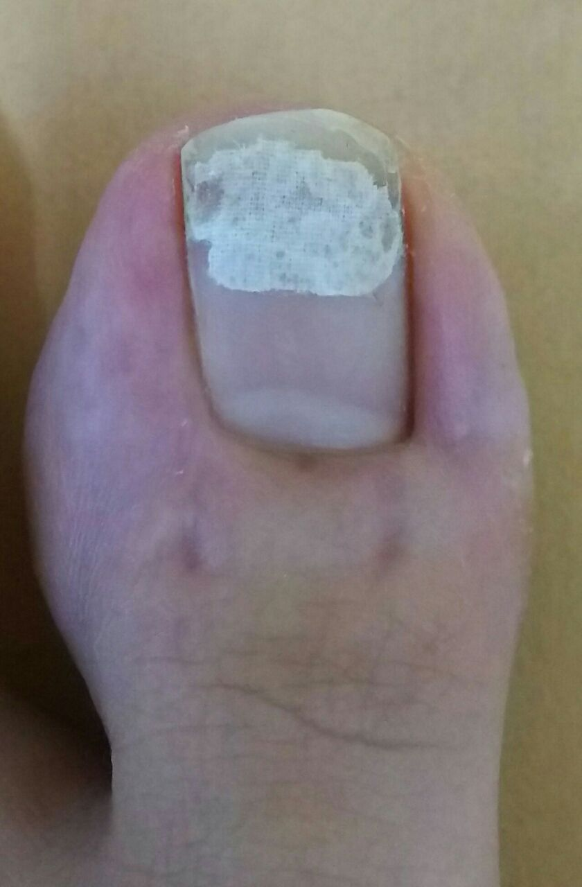 足の親指の爪に痛みがあると 歩行に支障が 訪問ケア ステーション
