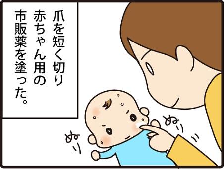 201604104こまマンガ_乳児湿疹2_2