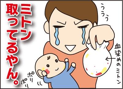 20160227乳児湿疹4