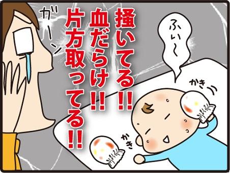 201604104こまマンガ_乳児湿疹2_4