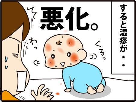 201604104こまマンガ_乳児湿疹4_3