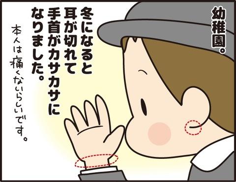 014乳児湿疹その6_2