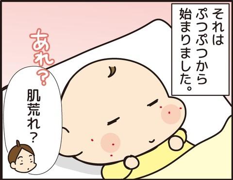 009乳児湿疹その1_1訂正