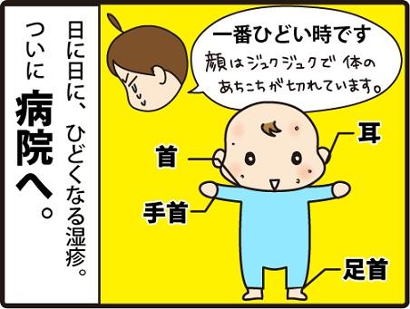 201604104こまマンガ_乳児湿疹5_1