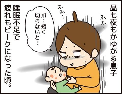 011乳児湿疹その4_1