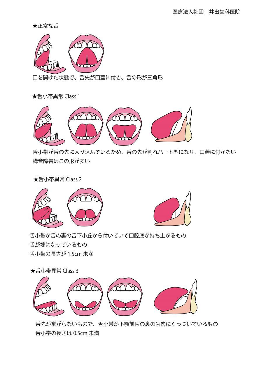 tongue-tie062a