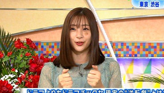 【悲報】足立梨花さん 顔の2ケ所に大きなアザが、視聴者から心配の声殺到!!!!!