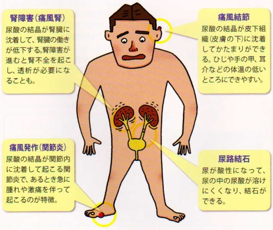腎障害(痛風腎)痛風結節 痛風発作(関節炎)尿路結石 1015