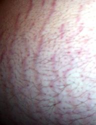 Belly Strech Marks