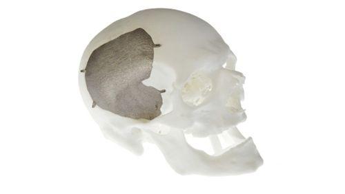Titanium skull implant