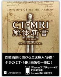 CTMRI_big のコピー