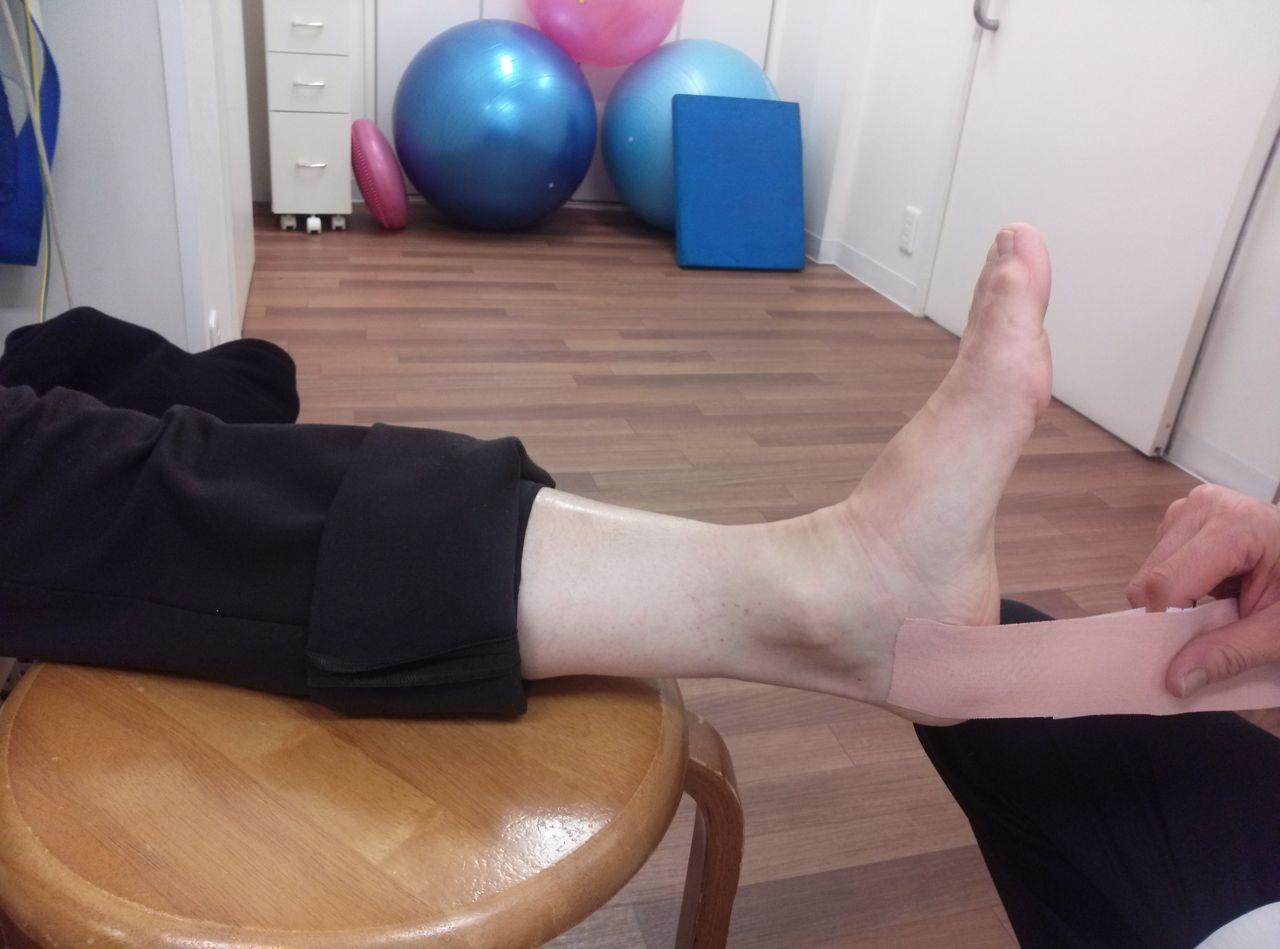 有 痛 性 外 脛骨 テーピング やり方 有痛性外脛骨障害に対するテーピング
