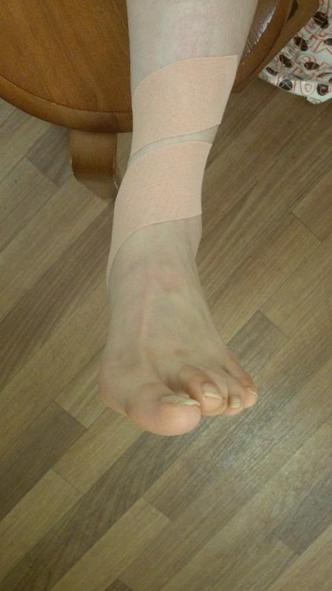 有 痛 性 外 脛骨 テーピング やり方 有痛性外脛骨を自分で治す方法 たかはし鍼灸接骨院 note