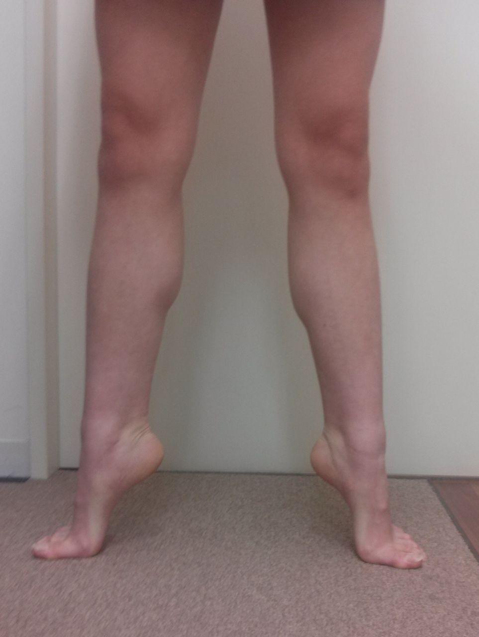 有 痛 性 外 脛骨 テーピング やり方 【有痛性外脛骨の治し方】痛みのない足を取り戻す方法