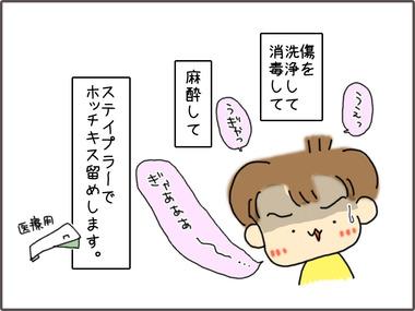 ほちきす1