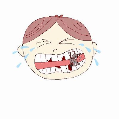 虫歯のイラストm