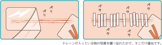 乳房全摘の創部