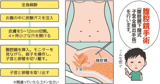 子宮摘出の腹腔鏡手術