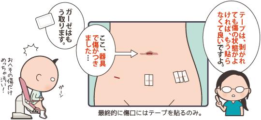 腹腔鏡手術の創部