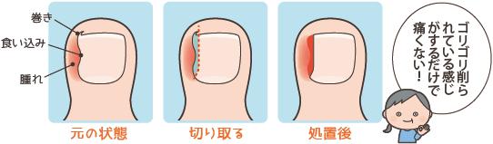 陥入爪の手術