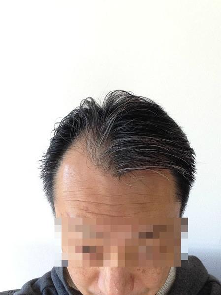 20141223my hair