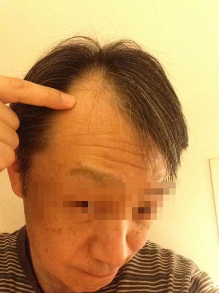 1230 Hair Report