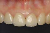 前歯術後01
