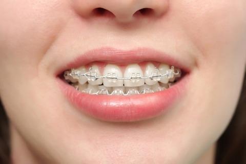 就活し始めた私に「言っちゃ悪いけど歯並びだけは治した方がいいと思う」と彼が言ってきた→そしてさらに…