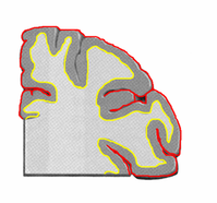 300px-Human_cerebral_cortex