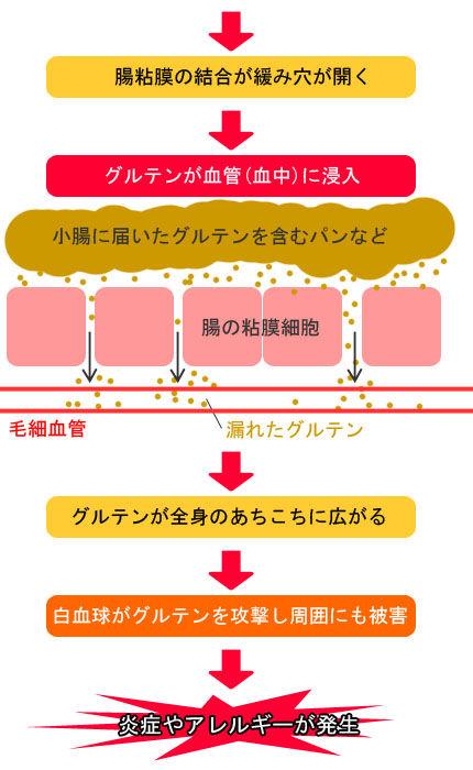 リーキーガットプロセス�