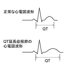 QT延長症候群に振り回される : いろとりどり日記