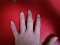 左手の中指の腫れ
