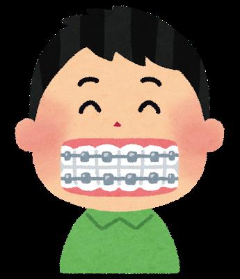 歯がガタガタの奴は借金してでも歯を治せ