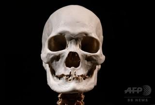 頭蓋骨AFP