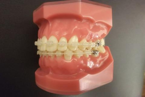 目立たない歯列矯正とはどのようなものですか?