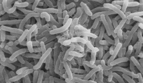 1024px-Cholera_bacteria_SEM
