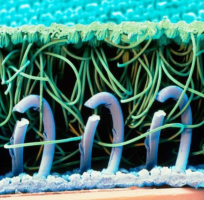 amazing_scanning_electron_microscope_pictures_24_pics-7