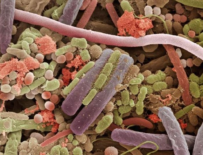 amazing_scanning_electron_microscope_pictures_24_pics-5