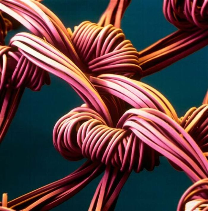 amazing_scanning_electron_microscope_pictures_24_pics-9