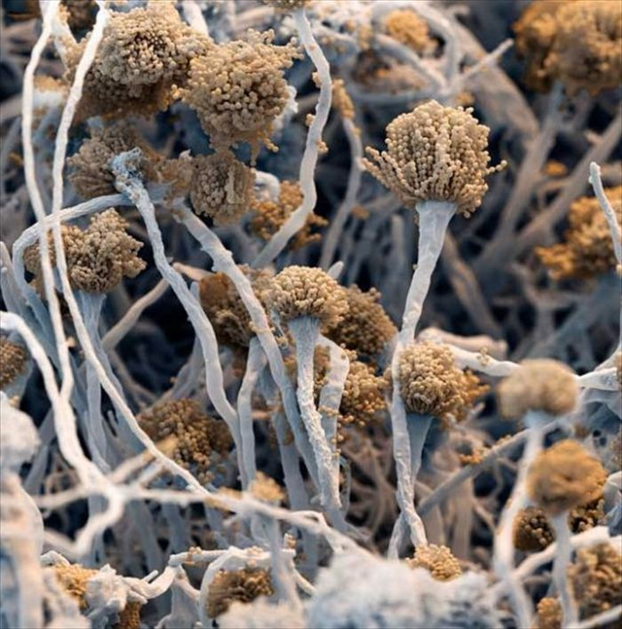amazing_scanning_electron_microscope_pictures_24_pics-18